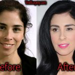 Sarah Silverman Plastic Surgery, Before and After Pictures