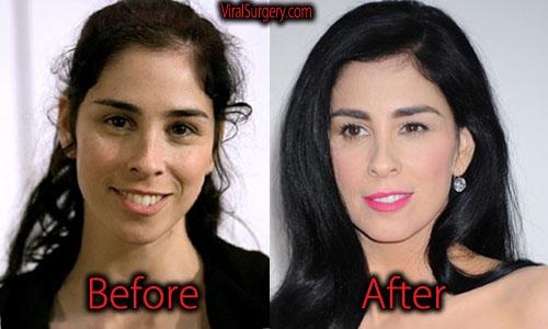 Sarah Silverman Plastic Surgery