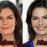 Sela Ward Plastic Surgery, Before and After Botox Pictures