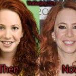 Amy Davidson Plastic Surgery: Before After Nose Job, Botox Pics