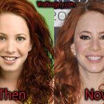 Amy Davidson Plastic Surgery: Before After Nose Job, Botox Pics