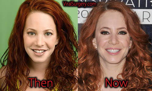 Amy Davidson Plastic Surgery