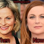 Amy Poehler Plastic Surgery, Before and After Botox Pictures