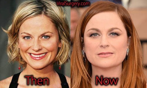 Top Celebrity Surgery | Page 20 of 27 | Celebrity Plastic