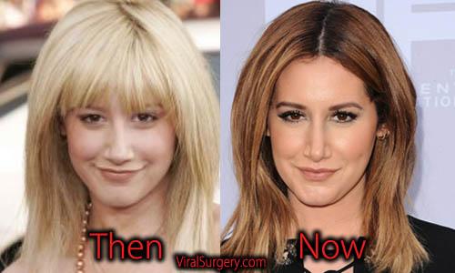 Ashley Tisdale Plastic Surgery Nose Job