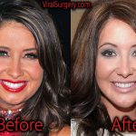 Bristol Palin Plastic Surgery, Before After Jaw Surgery Pictures