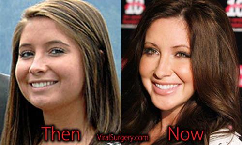 Bristol Palin Plastic Surgery, Jaw Surgery