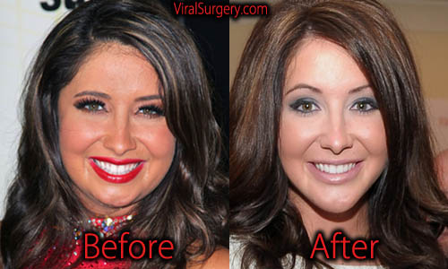bristol palin plastic surgery  jaw surgery before and