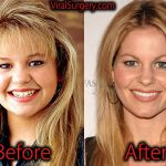 Candace Cameron Plastic Surgery, Before and After Botox Pictures