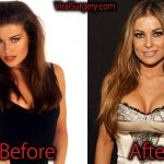 Carmen Electra Plastic Surgery, Before After Boob Job Pictures