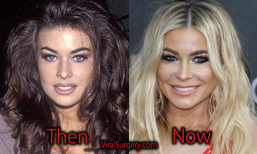 Carmen Electra Plastic Surgery