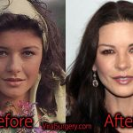 Catherine Zeta Jones Plastic Surgery, Before and After Facelift Pics