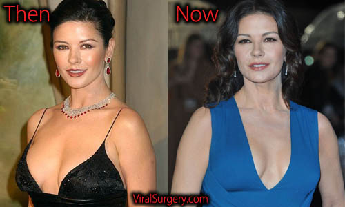 Catherine Zeta Jones Plastic Surgery, Boob Job