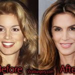 Cindy Crawford Plastic Surgery, Before and After Botox Pictures