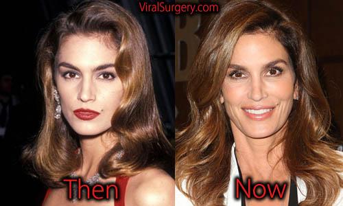 Cindy Crawford Plastic Surgery