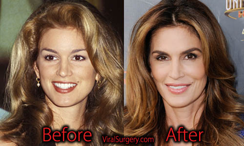 Cindy Crawford Plastic Surgery
