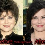 Delta Burke Plastic Surgery: Before and After Facelift, Botox Pictures