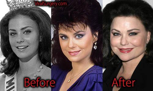 Delta Burke Plastic Surgery