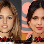 Eiza Gonzalez Plastic Surgery, Before and After Nose Job Pictures