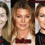 Ellen Pompeo Plastic Surgery, Before and After Botox Pictures