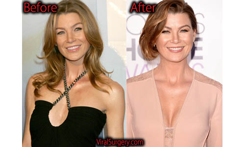Ellen Pompeo Plastic Surgery Picture