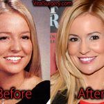 Emily Maynard Plastic Surgery, Before After Nose Job Pictures
