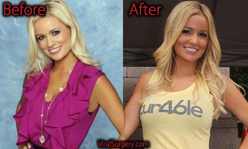 Emily Maynard Plastic Surgery