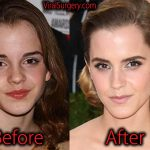 Emma Watson Plastic Surgery, Before and After Nose Job Pictures