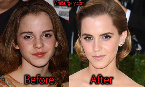 Emma Watson Plastic Surgery, Nose Job