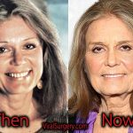 Gloria Steinem Plastic Surgery, Before and After Pictures