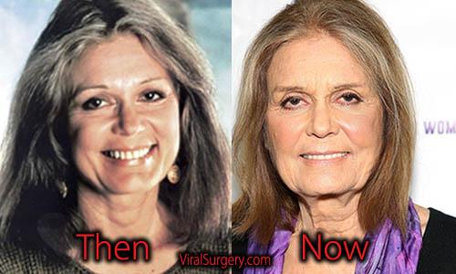 Gloria Steinem Plastic Surgery, Eye Surgery