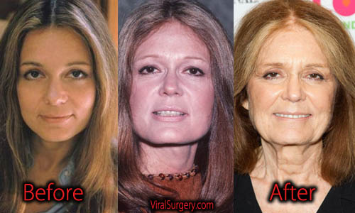 Gloria Steinem Plastic Surgery