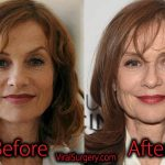 Isabelle Huppert Plastic Surgery Before After Facelift, Botox Pictures