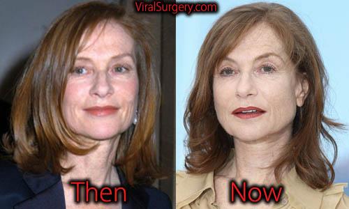 Isabelle Huppert Plastic Surgery, Botox
