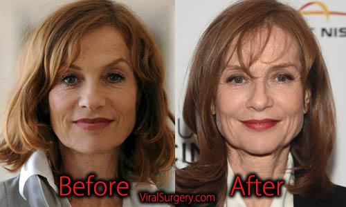 Isabelle Huppert Plastic Surgery