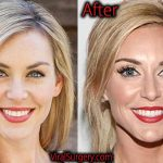 Jessica Robertson Plastic Surgery, Before After Facelift, Botox