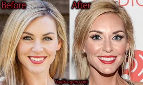 Jessica Robertson Plastic Surgery