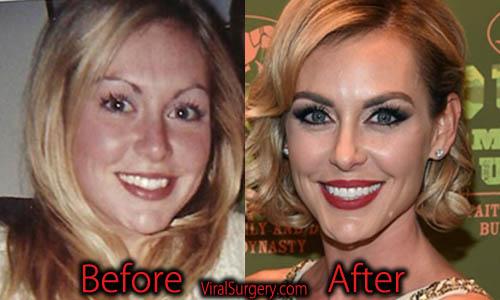 Jessica Robertson Plastic Surgery, Botox