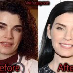 Julianna Margulies Plastic Surgery, Before and After Botox Pictures