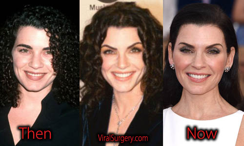 Julianna Margulies Plastic Surgery Botox