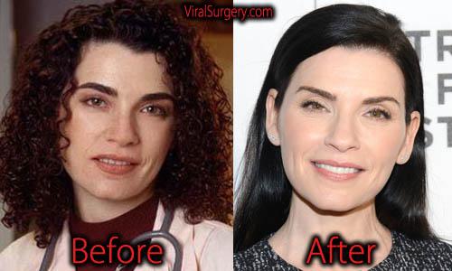 Julianna Margulies Plastic Surgery