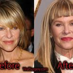 Kate Capshaw Plastic Surgery, Before and After Facelift Pictures