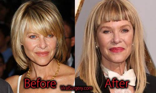 Kate Capshaw Plastic Surgery, Facelift