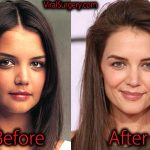 Katie Holmes Plastic Surgery, Before After Nose Job Pictures
