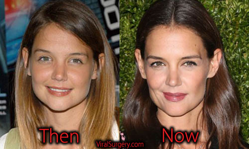 Katie Holmes Plastic Surgery, Nose Job
