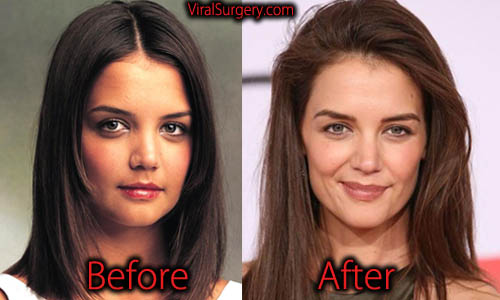 Katie Holmes Plastic Surgery
