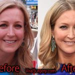 Lara Spencer Plastic Surgery, Before and After Botox Pictures