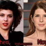 Marisa Tomei Plastic Surgery, Before After Botox Pictures