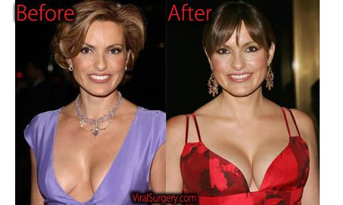 Mariska Hargitay Plastic Surgery Boob Job