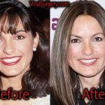 Mariska Hargitay Plastic Surgery, Before and After Pictures
